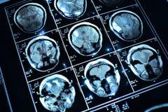 Καλώδιο στον εγκέφαλο Στοκ εικόνα με δικαίωμα ελεύθερης χρήσης