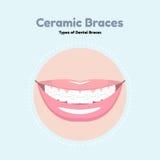 Κεραμικά οδοντικά στηρίγματα Στοκ εικόνα με δικαίωμα ελεύθερης χρήσης