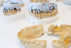 Κεραμικές οδοντικές κορώνες με τα μοσχεύματα σε ένα εργαστήριο στοκ εικόνα με δικαίωμα ελεύθερης χρήσης