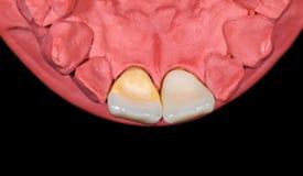 Κεραμική κορώνα incisor Στοκ εικόνα με δικαίωμα ελεύθερης χρήσης