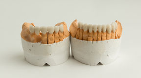 Κεραμική οδοντική κορώνα Στοκ εικόνες με δικαίωμα ελεύθερης χρήσης
