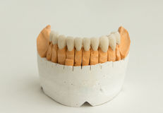 Κεραμική οδοντική κορώνα Στοκ εικόνα με δικαίωμα ελεύθερης χρήσης