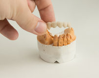 Κεραμική οδοντική κορώνα Στοκ Φωτογραφία