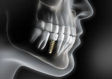 Κεφάλι με το οδοντικό μόσχευμα στο σαγόνι απεικόνιση αποθεμάτων