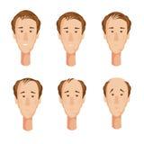 Κεφάλια ατόμων Balding καθορισμένα Στοκ Φωτογραφίες