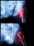 Κεφάλι σπασίματος του μηρού (κόκκαλο μηρών) (intertrochanteric σπάσιμο) (θέση 2) στοκ εικόνα