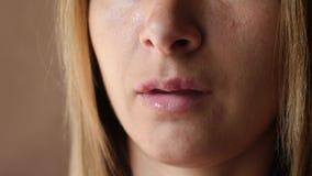 Κινηματογράφηση σε πρώτο πλάνο έρπη χειλικών ελκών γυναικών ` s Τα όμορφα χείλια καλύφθηκαν με τις κρύες πληγές Το κορίτσι γλείφε απόθεμα βίντεο