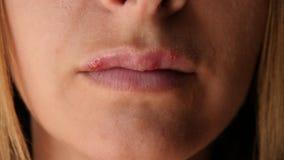 Κινηματογράφηση σε πρώτο πλάνο έρπη χειλικών ελκών γυναικών ` s Τα όμορφα χείλια καλύφθηκαν με τις κρύες πληγές Το κορίτσι γλείφε φιλμ μικρού μήκους
