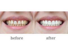 Κινηματογράφηση σε πρώτο πλάνο δοντιών μετά από την οδοντικές θεραπεία και τη λεύκανση στοκ φωτογραφία