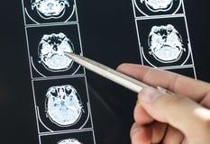Κινηματογράφηση σε πρώτο πλάνο της ιατρικής έννοιας αποτελέσματος ανίχνευσης εγκεφάλου MRI Στοκ Εικόνες