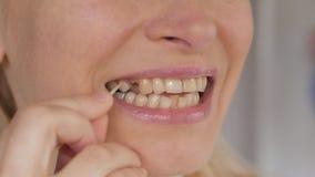 Κινηματογράφηση σε πρώτο πλάνο του προσώπου μιας ενήλικης γυναίκας που εξετάζει ένα ελλείπον δόντι στο στόμα της απόθεμα βίντεο