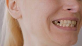 Κινηματογράφηση σε πρώτο πλάνο του προσώπου μιας ενήλικης γυναίκας που εξετάζει ένα ελλείπον δόντι στο στόμα της φιλμ μικρού μήκους