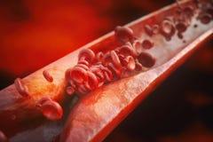 Κινηματογράφηση σε πρώτο πλάνο μιας atherosclerosis- τρισδιάστατης απόδοσης Διανυσματική απεικόνιση