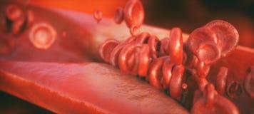 Κινηματογράφηση σε πρώτο πλάνο μιας atherosclerosis- τρισδιάστατης απόδοσης Ελεύθερη απεικόνιση δικαιώματος