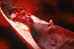Κινηματογράφηση σε πρώτο πλάνο μιας atherosclerosis- τρισδιάστατης απόδοσης Απεικόνιση αποθεμάτων