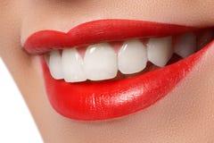 Κινηματογράφηση σε πρώτο πλάνο του χαμόγελου με τα άσπρα υγιή δόντια Στοκ Φωτογραφίες