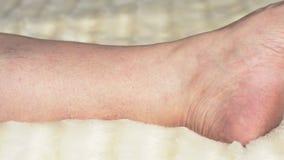 Κιρσώδεις φλέβες και θρομβοφλεβίτιδα στα πόδια μιας γυναίκας, κινηματογράφηση σε πρώτο πλάνο απόθεμα βίντεο