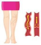 Κιρσώδεις φλέβες στο ανθρώπινο πόδι ελεύθερη απεικόνιση δικαιώματος