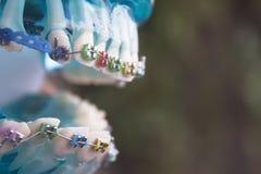 Κλασικό οδοντικό orthodontics μετάλλων με τους χρωματισμένους γάντζους στοκ εικόνες