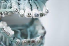 Κλασικό οδοντικό orthodontics μετάλλων με τους χρωματισμένους γάντζους στοκ φωτογραφία με δικαίωμα ελεύθερης χρήσης