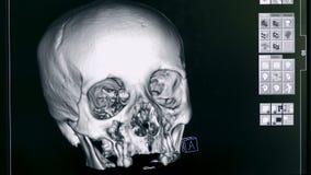 Κλείστε επάνω ενός τρισδιάστατου προτύπου ενός ανθρώπινου εγκεφάλου σε μια επίδειξη φιλμ μικρού μήκους