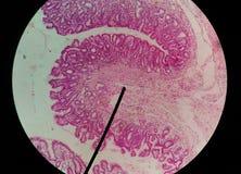 Κλείστε επάνω τα ανθρώπινα κύτταρα με το μικροσκόπιο στοκ φωτογραφίες