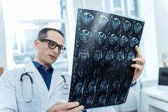 Κλείστε επάνω της ανίχνευσης mri στα χέρια ενός επαγγελματικού νευρολόγου στοκ φωτογραφία με δικαίωμα ελεύθερης χρήσης