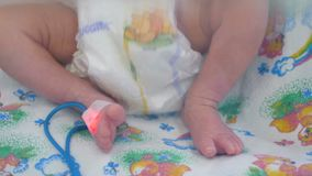 Κλείστε επάνω της τοποθέτησης των ποδιών μωρών ` s μετά από την ιατρική διαδικασία απόθεμα βίντεο