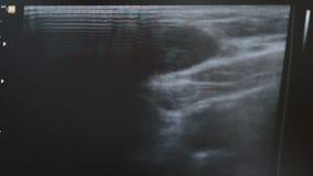 Κλείστε επάνω το βίντεο του οργάνου ελέγχου υπερήχου Μηχανή Ultrasonography Απεικόνιση ή sonography υπερήχου που χρησιμοποιείται  φιλμ μικρού μήκους