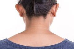 Κλείστε επάνω το δέρμα του λαιμού γυναικών που παρουσιάζει διαφορετικό χρώμα από τον ήλιο UV Στοκ Φωτογραφία