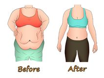 Κοιλιακό λίπος μιας γυναίκας πριν και μετά από να κάνει δίαιτα, τον αθλητισμό ή τη χειρουργική επέμβαση Διανυσματική απεικόνιση