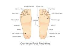 Κοινά προβλήματα ποδιών διανυσματική απεικόνιση