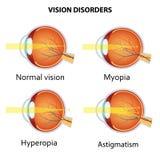 Κοινές αναταραχές όρασης απεικόνιση αποθεμάτων