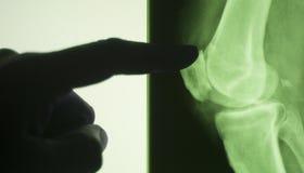 Κοινή των ακτίνων X ανίχνευση δοκιμής γονάτων Στοκ εικόνες με δικαίωμα ελεύθερης χρήσης