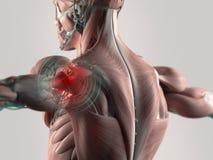 Κοινός πόνος ώμων στοκ εικόνα με δικαίωμα ελεύθερης χρήσης