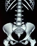 Κοιλιακή ακτίνα X Στοκ Εικόνες