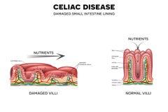 Κοιλιακή ασθένεια απεικόνιση αποθεμάτων