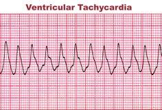 Κοιλιακή ταχυκαρδία - θανάσιμη αρρυθμία καρδιών Στοκ εικόνα με δικαίωμα ελεύθερης χρήσης