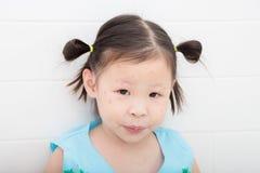 Κορίτσι με το κόκκινο σημείο από το δάγκωμα κουνουπιών στο πρόσωπο Στοκ Φωτογραφίες