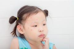 Κορίτσι με το κόκκινο σημείο από το δάγκωμα κουνουπιών στο πρόσωπο Στοκ Φωτογραφία