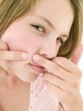 κορίτσι προσώπου που σκάει το εφηβικό zit Στοκ εικόνα με δικαίωμα ελεύθερης χρήσης