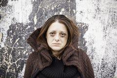 Κορίτσι λυπημένο και άρρωστο Στοκ Εικόνες