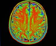 Κτύπημα εγκεφάλου Mri στοκ φωτογραφίες με δικαίωμα ελεύθερης χρήσης