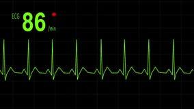 Κτύπος της καρδιάς ζωτικότητας EKG απόθεμα βίντεο