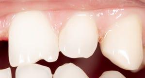 Κυρτά δόντια σε ένα ανθρώπινο στόμα στοκ φωτογραφία με δικαίωμα ελεύθερης χρήσης