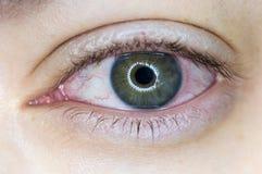 Κόκκινο ενοχλημένο ανθρώπινο μάτι στοκ φωτογραφία