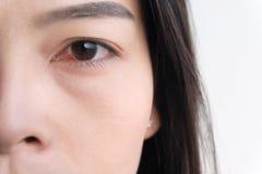 Κόκκινο μάτι επιπεφυκίτιδα ή ενόχληση των ευαίσθητων ματιών στοκ φωτογραφία με δικαίωμα ελεύθερης χρήσης