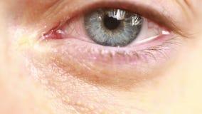 κόκκινο μάτι με τα δάκρυα - κινηματογράφηση σε πρώτο πλάνο απόθεμα βίντεο