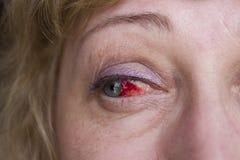 Κόκκινο μάτι στοκ φωτογραφίες