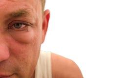 Κόκκινο πρησμένο υδατώδες μάτι με το άσπρο υπόβαθρο Στοκ εικόνα με δικαίωμα ελεύθερης χρήσης